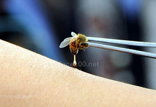蜂疗—法国雅馨安娜腰背理疗养生套